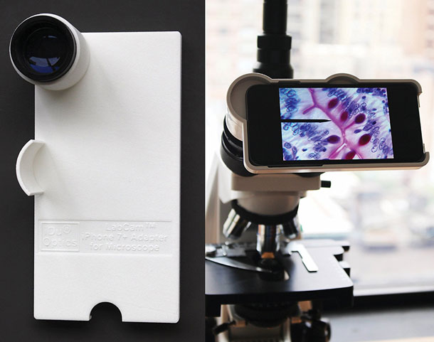 https://iphoneness-exxponentllc.netdna-ssl.com/wp-content/uploads/2017/03/10/iphone-7-microscope-adapter.jpg